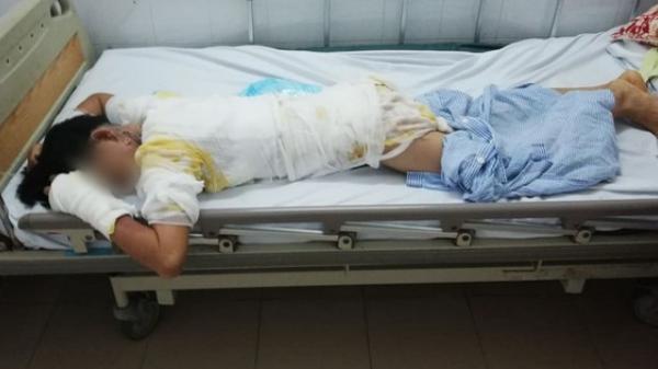 Vụ chồng tẩm xăng thiêu sống cả nhà vì vợ dỗ con không nín: Người mẹ hoảng loạn, bé trai 2 tuổi bị nhiễm trùng nặng