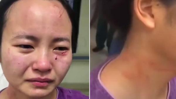 Nữ y tá bật khóc nức nở với gương mặt trầy xước, dính máu khi bị bệnh nhân nhiễm Covid-19 trong khu cách ly tấn công